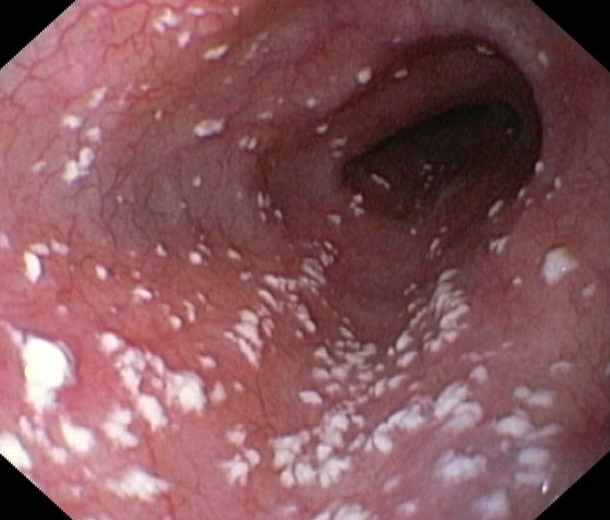 What Is a Vaginal Yeast Infection What Is a Vaginal Yeast Infection new pics